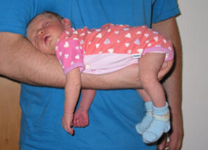 Baby-Blähungen - Fliegergriff